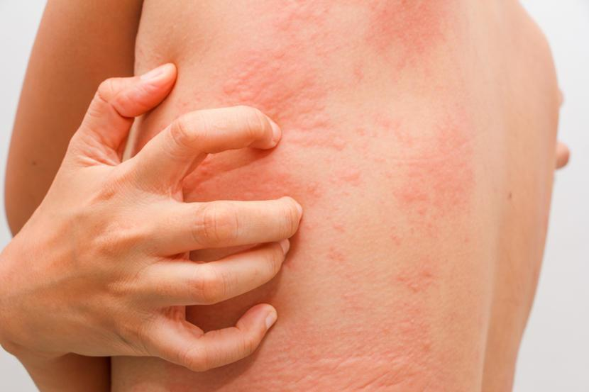 Treatment and diagnosis of Scabies – Men's Health