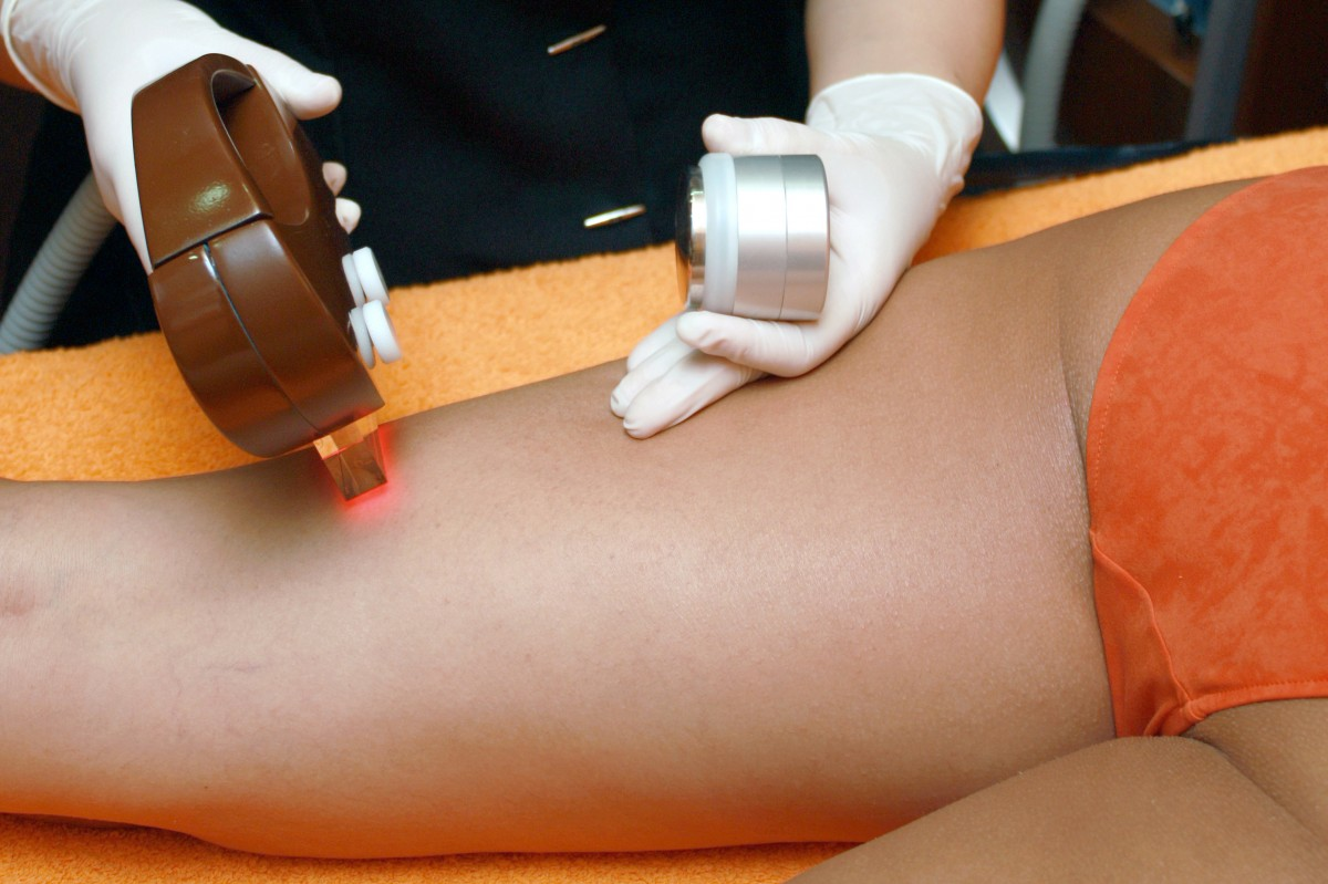 How Long Does Laser Hair Removal Last: Is It for You?
