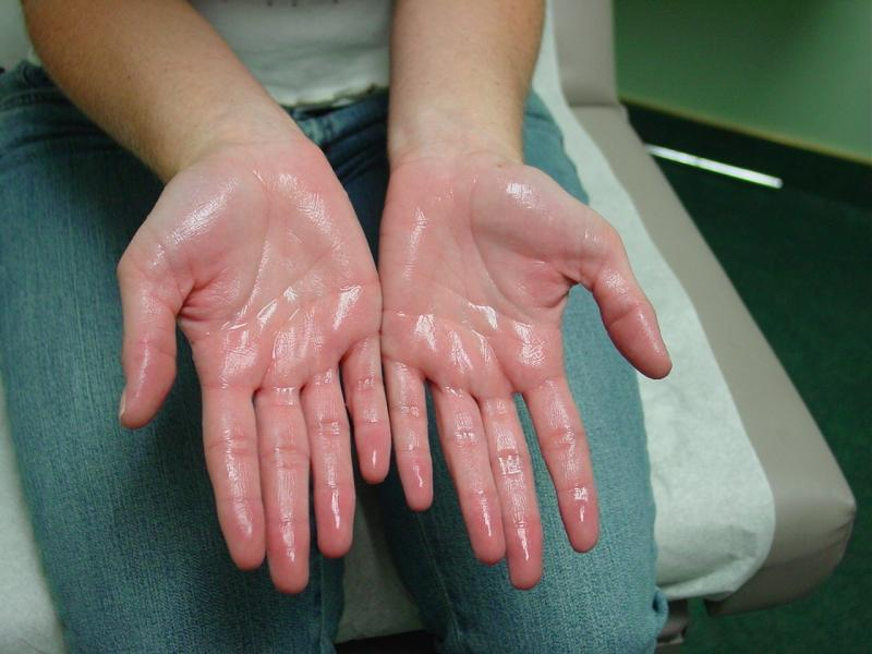 Here Is All You Need To Know About Treating Your Hyperhidrosis