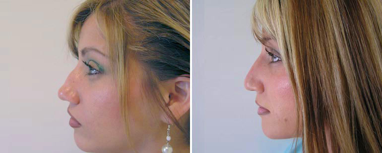How to Prepare for Rhinoplasty: What you Need to Know